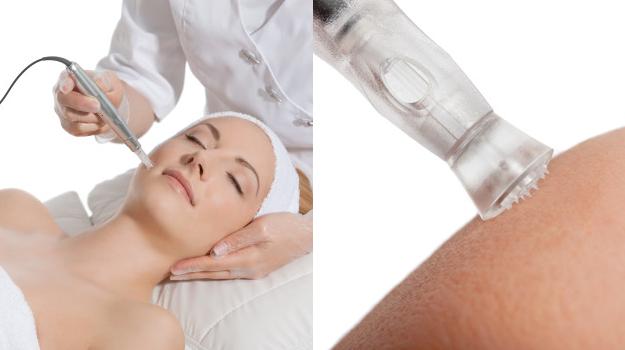 Behandlung Microneedling im Gesicht