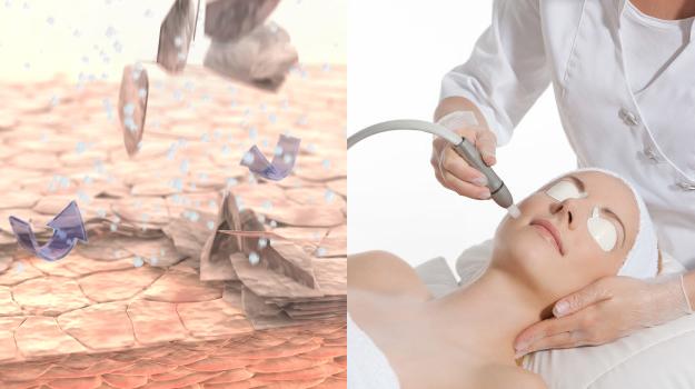 Behandlung Microdermabrasion